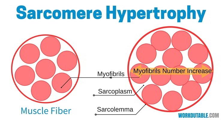 sarcomere hypertrophy